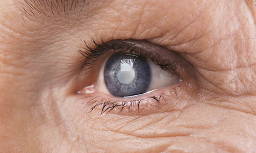 Living through the loss of loved ones – Story of a cataract patient: Zeenat